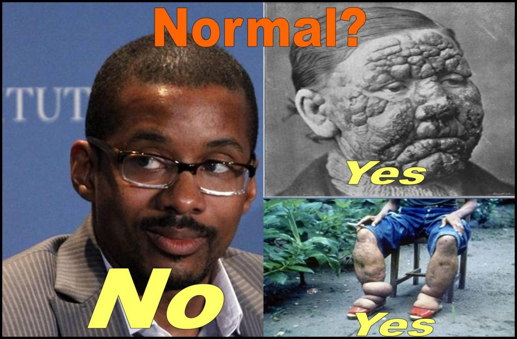GEORGETOWN PROFESSOR CHRIS BRUMMER, The 10 Worst Tropical Diseases to Avoid Like the Plague