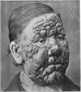 tropical-disease-leprosy-public-domain-266x300