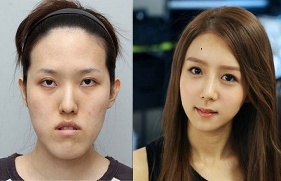 BEFORE AND AFTER...Plastic Surgery in South Korea Masks Honey's Real Pathetic Look...