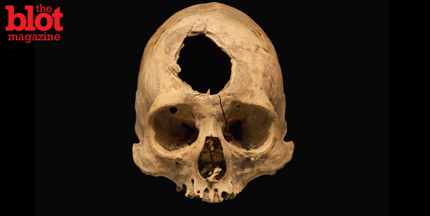 For centuries, people have taken to trepanation, a procedure in which a hole is drilled into the skull. Some say it relieves pain, some get a euphoric high. (© Scientifica, I/Visuals Unlimited/Corbis photo)
