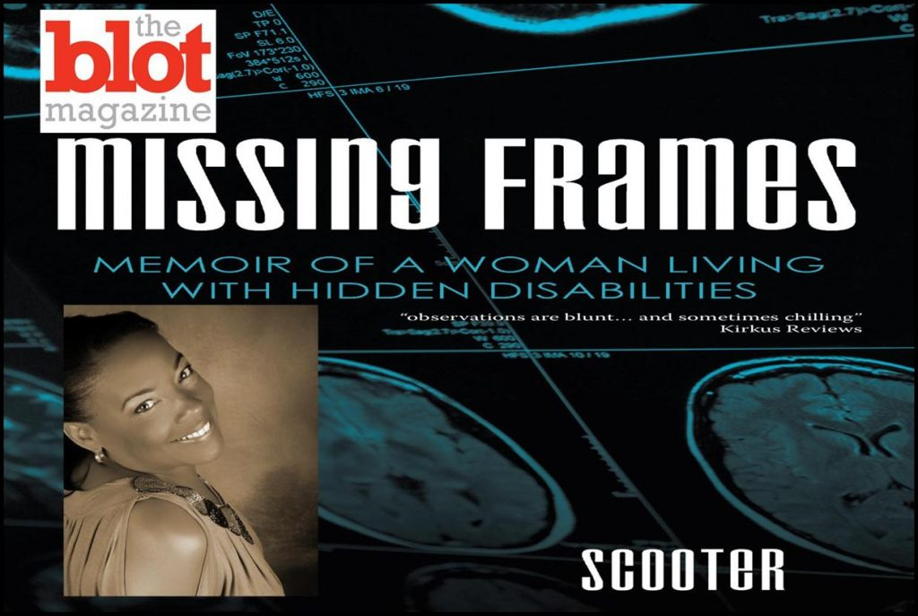 Missing Frames, Revelation of Unknown Traumatic Brain Injury Could Be You