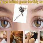 Tattoo to Eye Leaves Ottawa Model in Pain, Partially Blind
