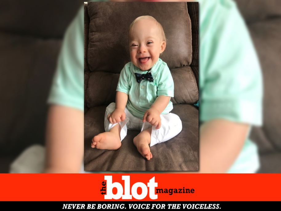 Gerber Spokesbaby with Downs to Shed Light on Special Needs