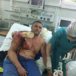 Biggest Bad Ass, Belarus Paraglider Stabbed by Groot