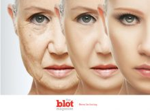 Photo Aging, What is it and How to Combat it