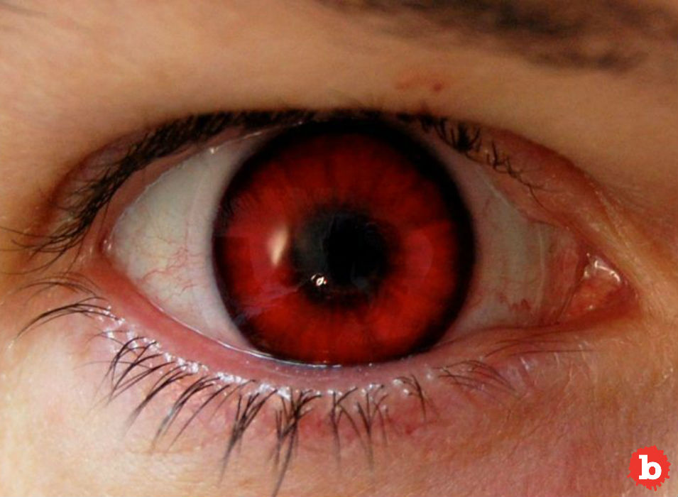 Man Overdosed on Viagra, Gets Permanently Red Tinged Vision
