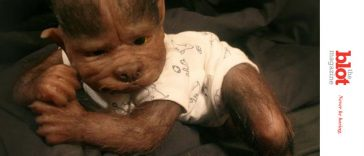 17 Babies in Spain Get Werewolf Syndrome After Drug Error