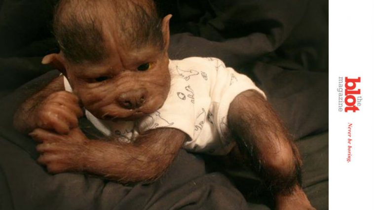 17 Babies in Spain Get Werewolf Syndrome After Drug Error