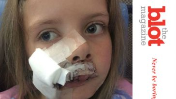 Labrador Attacks 9-Year-Old Girl, 230 Stitches of Damage