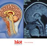 Chinese Woman Suffers Dizziness, But Was Just Missing Her Cerebellum