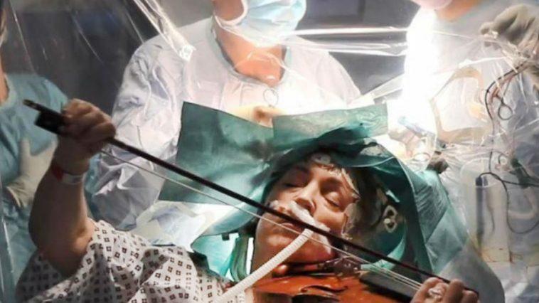 Woman Plays Violin During Brain Cancer Brain Surgery