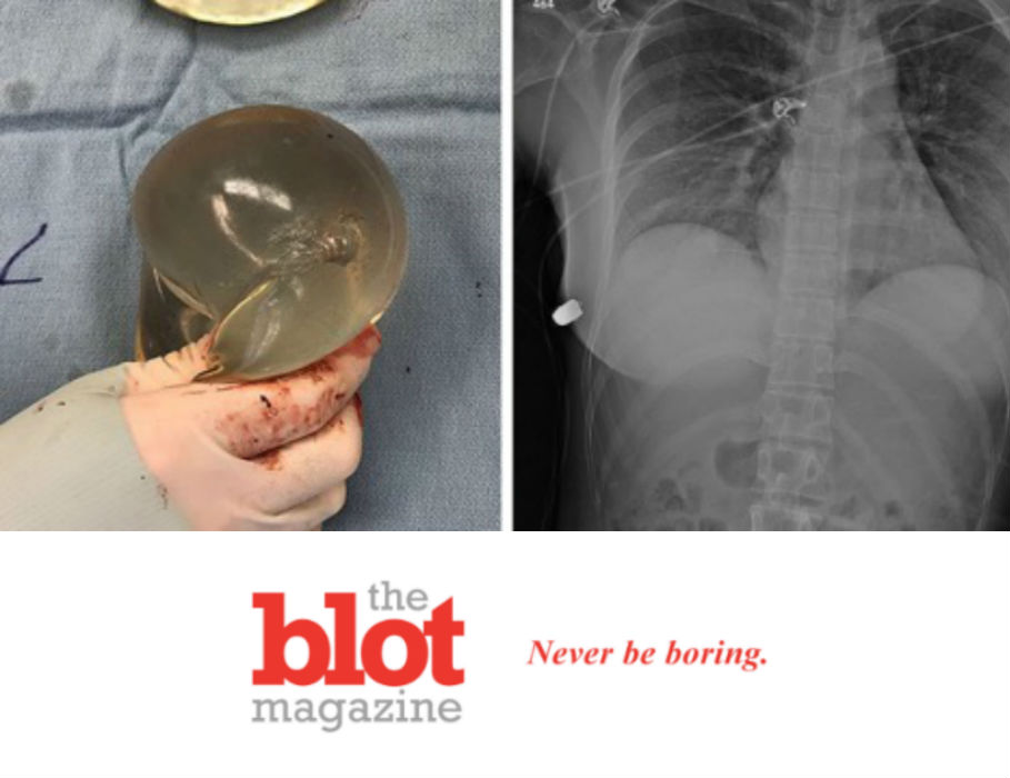 Breast Implants Save Woman's Life From Bullet Aimed at Heart